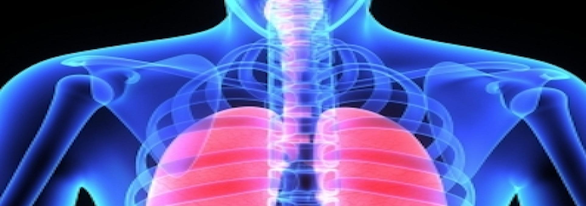 Occupational Asthma